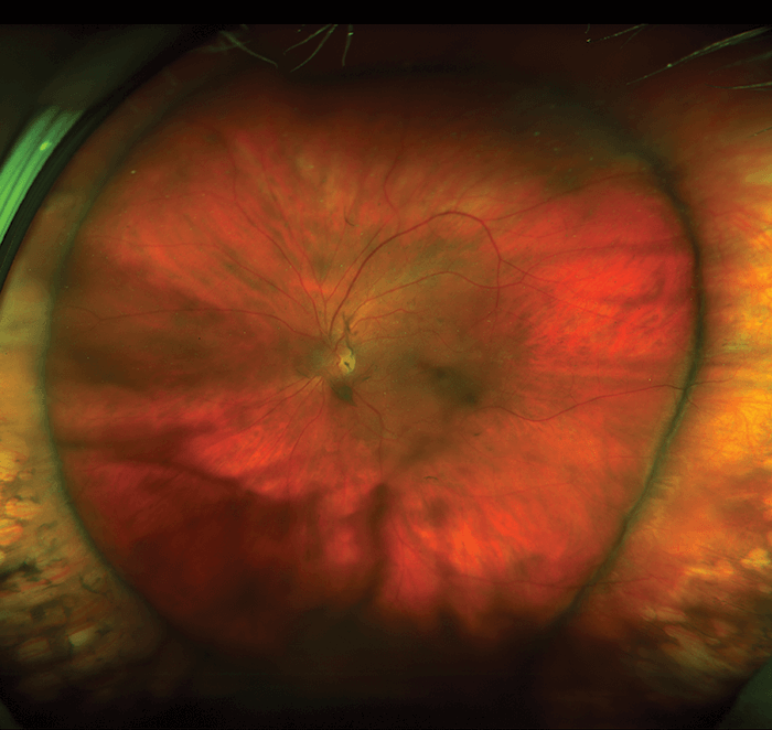 The Art Of Eyes Posterior Segment The Ophthalmologist