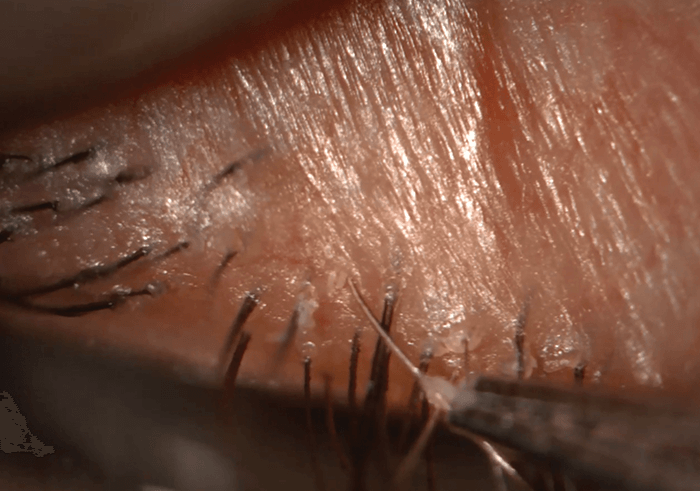 Demodex Innocent Or Guilty In Blepharitis